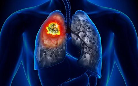 Пензенцам озвучили простой способ избежать рака легких