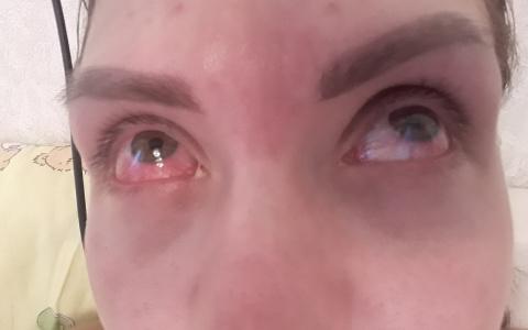 Глаза налитые кровью: пензячка рассказала жуткую историю о красоте и страданиях