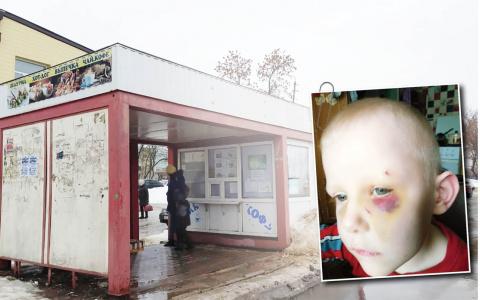 Мальчик упал лицом на железные ножки бака и мог остаться без глаза: кто виноват?
