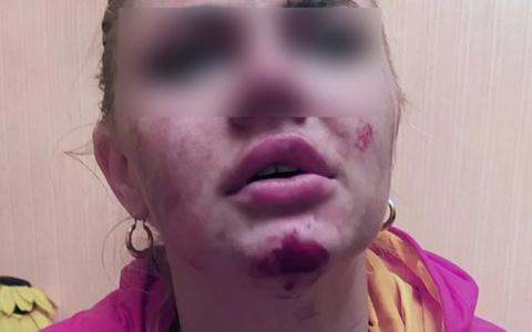 В Пензе девушку внезапно атаковал таксист