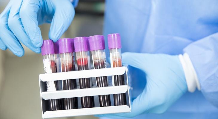 Пензенцы с этой группой крови наиболее уязвимы к коронавирусу