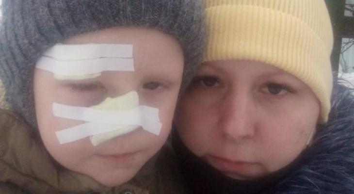 «Разрез до кости и глаз гноится»: мама мальчика рассказала о кошмаре наяву
