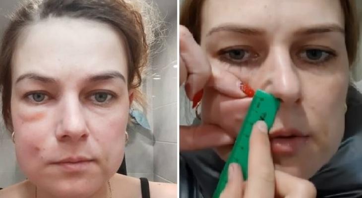 «Отсидел и еще отсижу»: женщине угрожают после неудачной операции